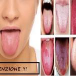 Hai la lingua spaccata o di uno strano colore? Ecco cosa devi sapere! Ne vale la tua salute