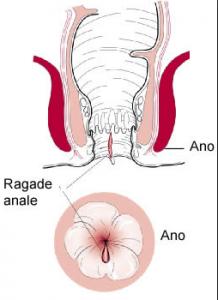 Ragadi anali