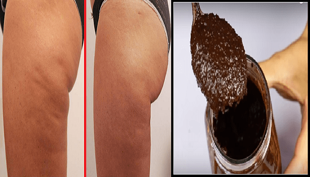 Cellulite e caffè
