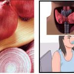 La cipolla attrae e sconfigge molti virus: E' solo mito o anche realtà? TUTTO QUELLO CHE DOVETE SAPERE