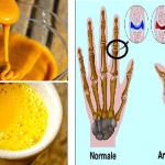 Ecco la potente mistura capace di combattere Artrite reumatoide e Dolori Articolari e non solo! Scoprila