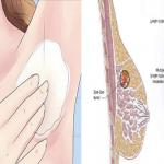Disintossicati e previeni il Cancro al seno applicando questa miscela potente sulle ascelle. INCREDIBILE