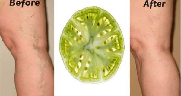 Curare le vene varicose con i pomodori verdi