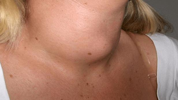 latte di soia tiroide